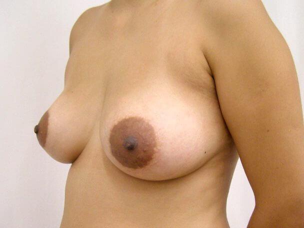 No.7豊胸 横 術後7ヶ月の症例写真