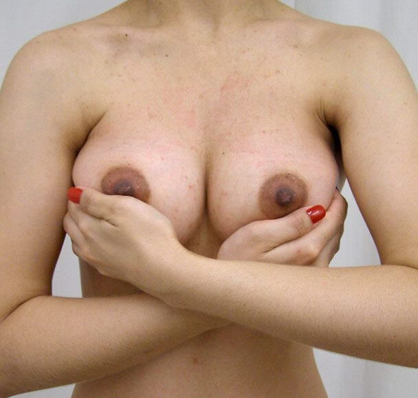 No.11 豊胸 正面 術後1ヶ月寄せの症例写真