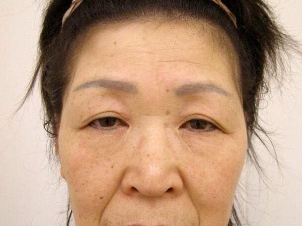 No.52 若返りボトックス治療 術前 症例写真