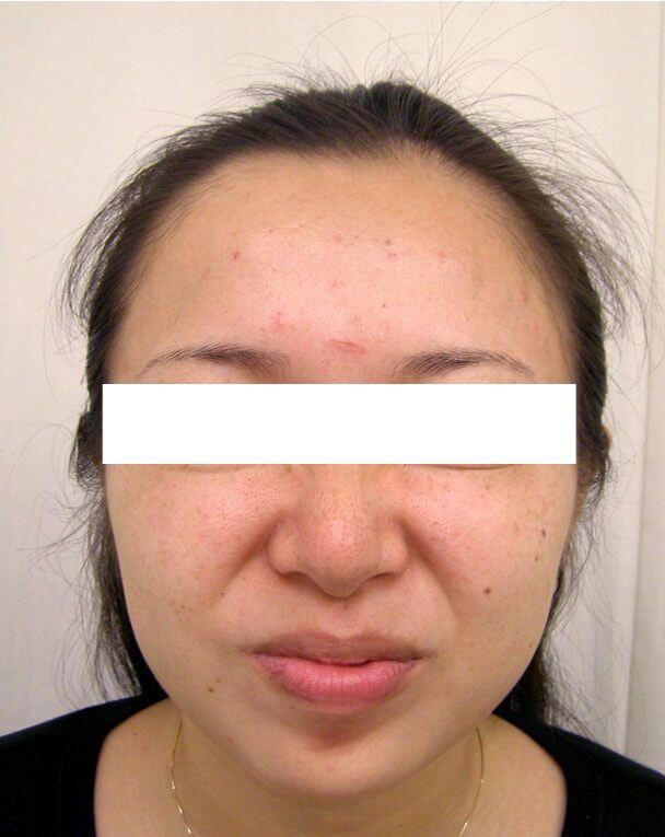 No.121ボトックス治療 術後12日の症例写真