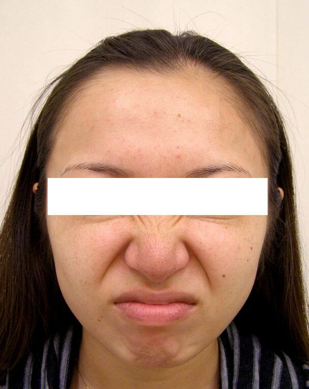 No.121 ボトックス治療 術前 症例写真