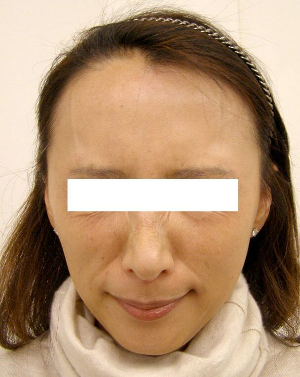 No.124ボトックス治療 術後1ヶ月の症例写真