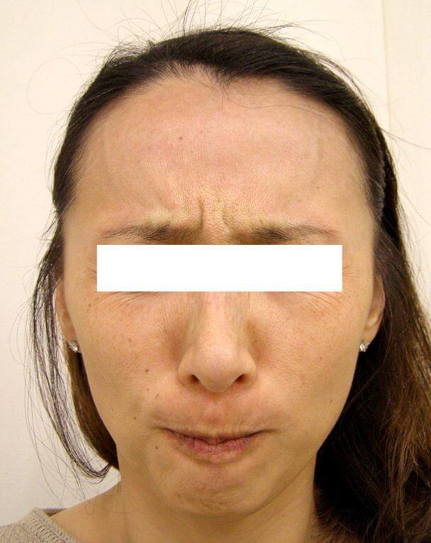 No.124 ボトックス治療 術前 症例写真