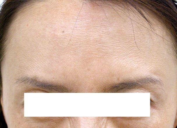No.124 ボトックス 術後1ヶ月の症例写真