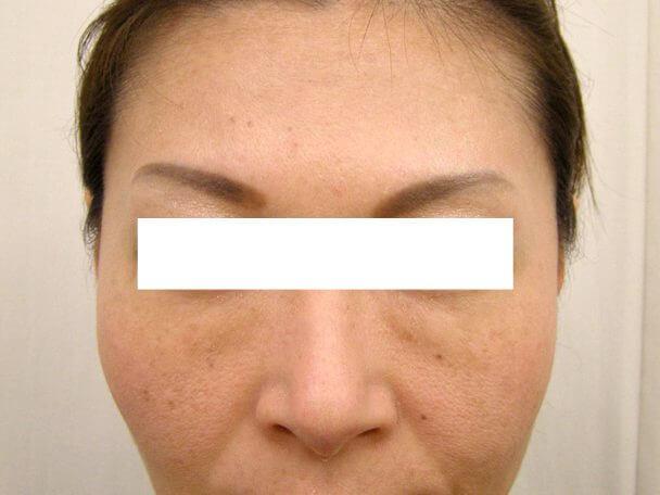 No125ボトックス治療 顔全体 術後16日の症例写真