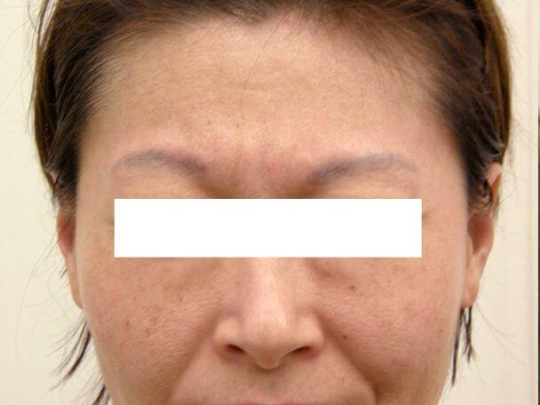 No125ボトックス治療 顔全体 術前-症例写真