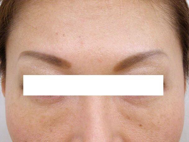 No125眉間のボトックス 術後16日の症例写真