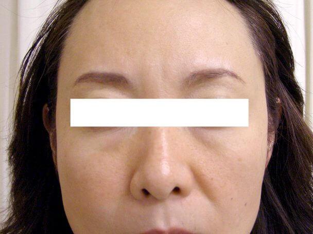 No.126額のボトックス 術後12日顔全体の症例写真