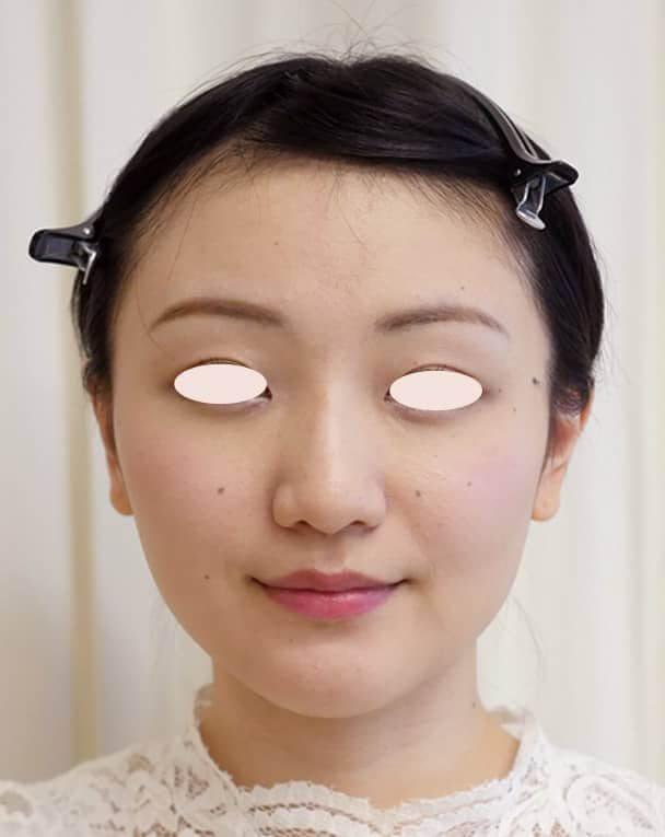 No.109111 24歳 エラボトックス+鼻のヒアルロン酸 サムネイル術後1ヶ月 顔全体