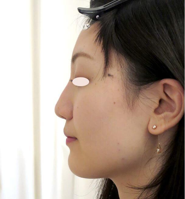 No.109111 24歳 エラボトックス+鼻のヒアルロン酸 術前 横顔
