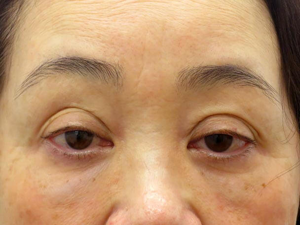 No.23 57歳 切らない眼瞼下垂術前写真