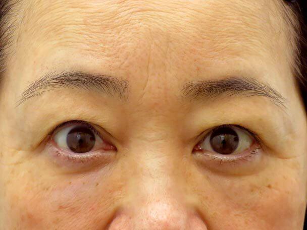 No.23 57歳 切らない眼瞼下垂術直後写真