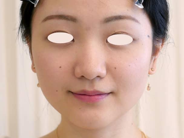 No.109111 24歳 エラボトックス+鼻のヒアルロン酸 サムネイル術前