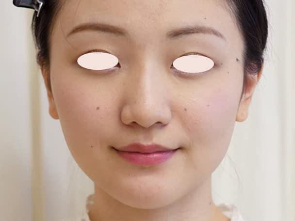 No.109111 24歳 エラボトックス+鼻のヒアルロン酸 サムネイル術後1ヶ月
