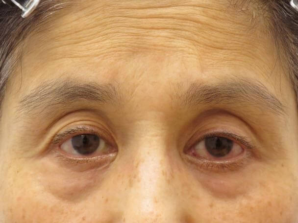 切らない眼瞼下垂 術前写真