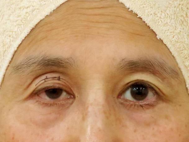 切らない眼瞼下垂 術中