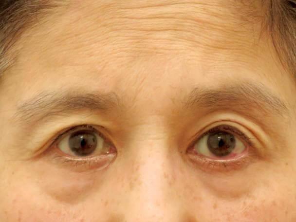 切らない眼瞼下垂 術直後