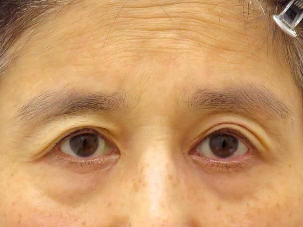 切らない眼瞼下垂 術後30分