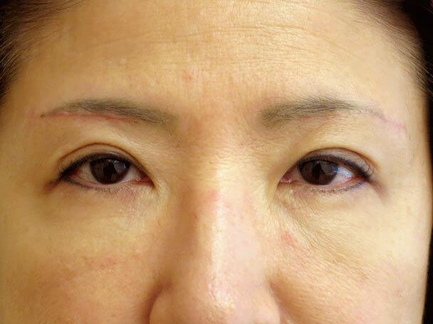 眉下切開 術後1ヶ月