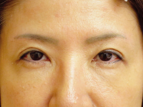 眉下切開 術後6ヶ月