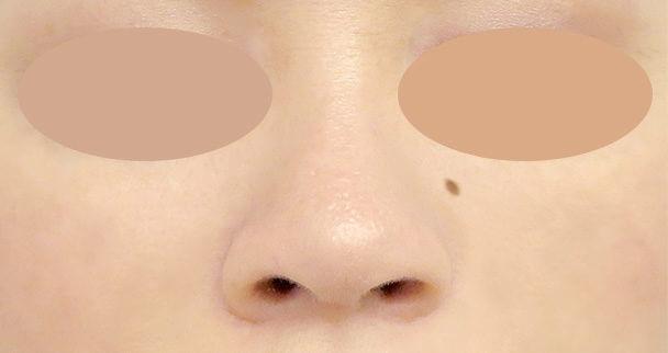 鼻中隔延長と鼻孔縁下降術の正面術後写真