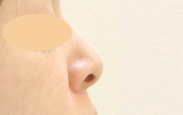 鼻中隔延長と鼻孔縁下降術の横術前写真