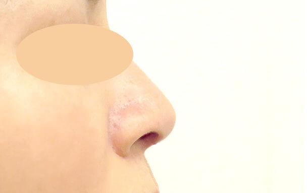 鼻中隔延長と鼻孔縁下降術の横術後写真
