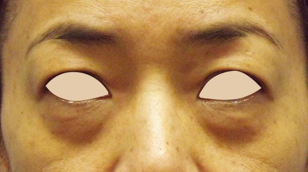 48歳 目の下のたるみ取り症例 正面術前