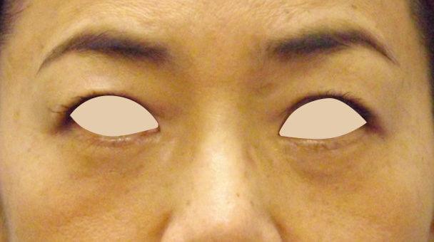48歳 目の下のたるみ取り症例 正面術後