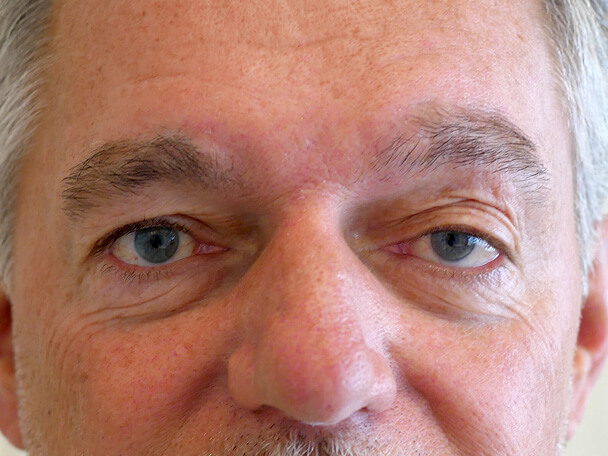 海外からご来院の先天性眼瞼下垂の術前写真
