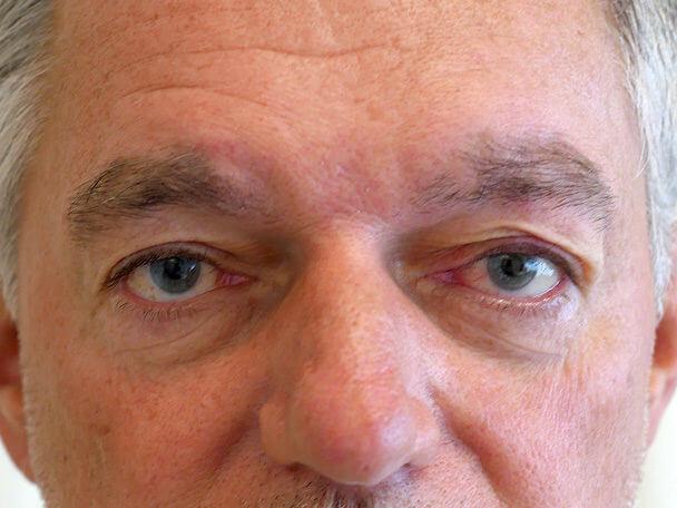 海外からご来院の先天性眼瞼下垂の術直後写真