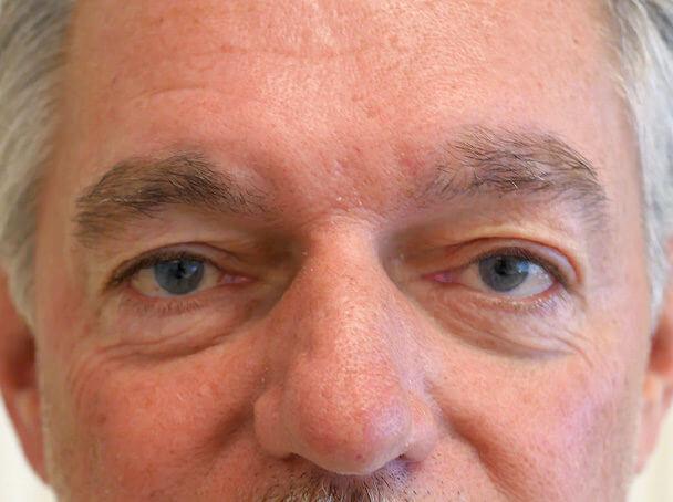 海外からご来院の先天性眼瞼下垂の術後1週間写真
