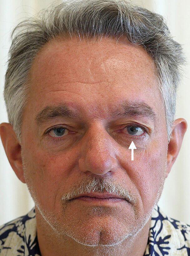 海外からご来院の先天性眼瞼下垂の術直後 全顔写真