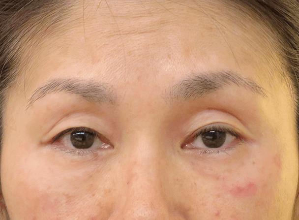 54歳女性(中度の眼瞼下垂)切らない眼瞼下垂術前写真