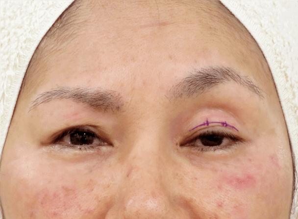 54歳女性(中度の眼瞼下垂)切らない眼瞼下垂術中写真