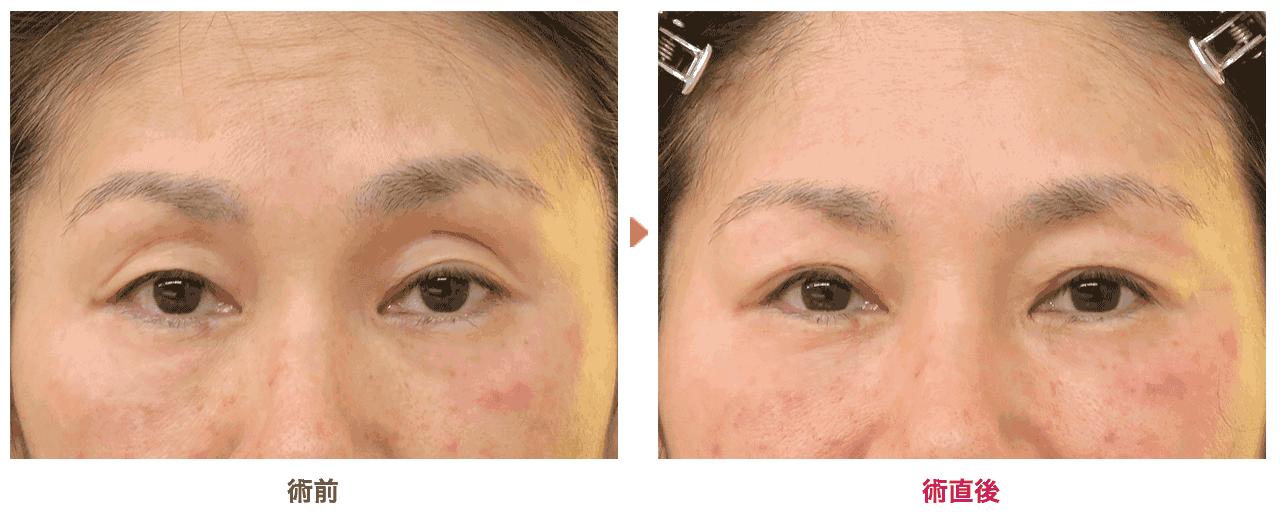 切らない眼瞼下垂の新しい症例写真を公開しました