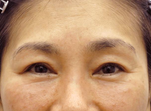 54歳女性(中度の眼瞼下垂)切らない眼瞼下垂術後1ヶ月写真