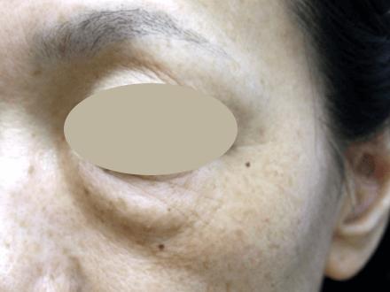 45歳女性 目の下のたるみ・クマ取りの術前写真