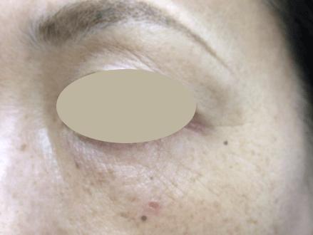 45歳女性 目の下のたるみ・クマ取りの術後5ヶ月写真