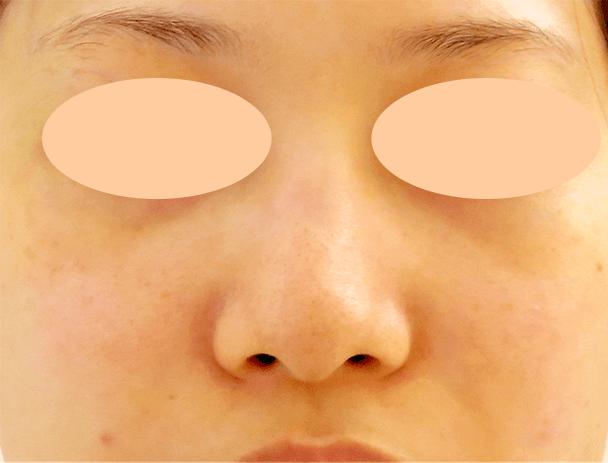 26歳女性 鼻翼縮小+鼻尖形成 術前写真