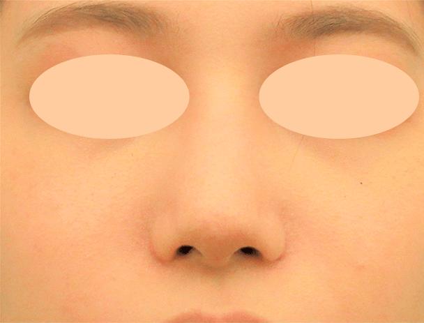 26歳女性 鼻翼縮小+鼻尖形成 術後1ヶ月写真