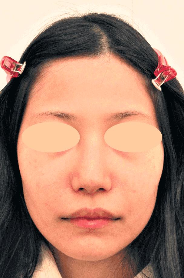 26歳女性 鼻翼縮小+鼻尖形成 術後1ヶ月正面写真
