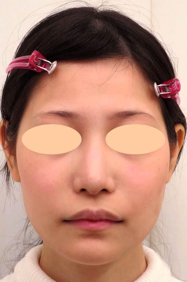 26歳女性 鼻翼縮小+鼻尖形成 術後6ヶ月正面写真