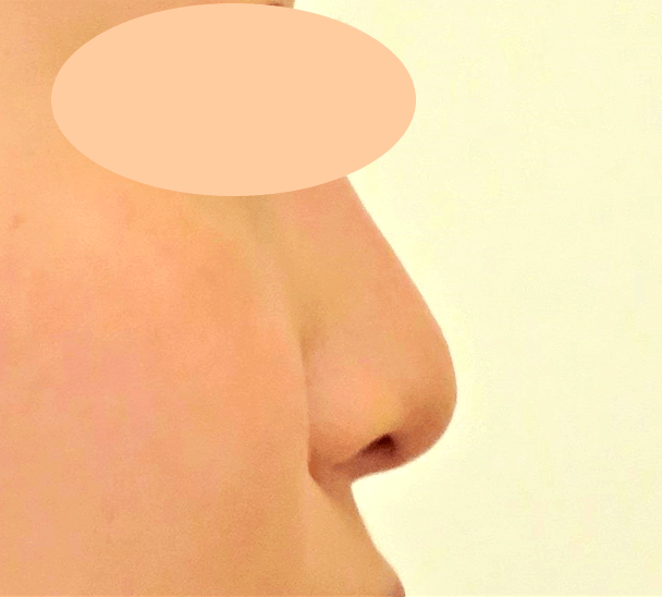 26歳女性 鼻翼縮小+鼻尖形成 術前横写真