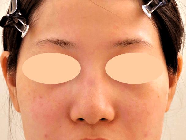 26歳女性 鼻翼縮小+鼻尖形成 術前正面写真