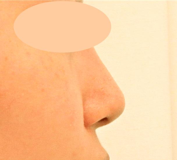 26歳女性 鼻翼縮小+鼻尖形成 術後1ヶ月横写真