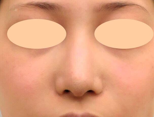 26歳女性 鼻翼縮小+鼻尖形成 術後6ヶ月正面アップ写真