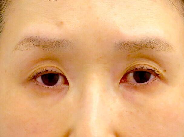 45歳 中度の後天性眼瞼下垂の術前写真