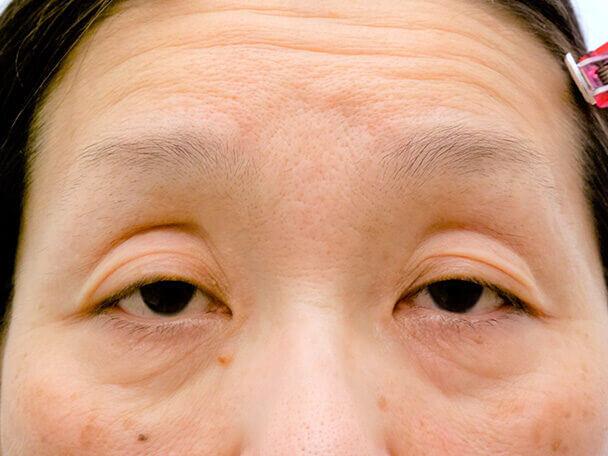 54歳重度後天性眼瞼下垂の術前写真