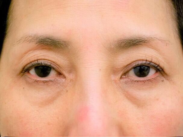 56歳 中度の後天性眼瞼下垂の術前写真